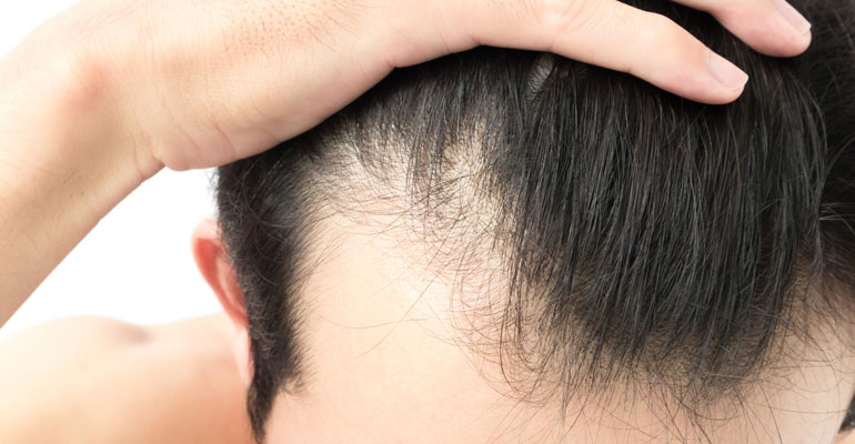 Everything Know Lllt Hair Loss