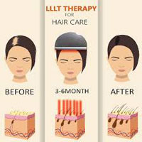 Hair Loss Lllt Procedure