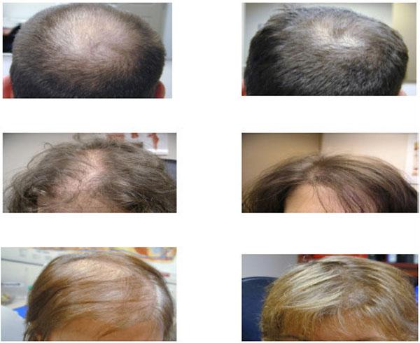 Hair Loss Lllt