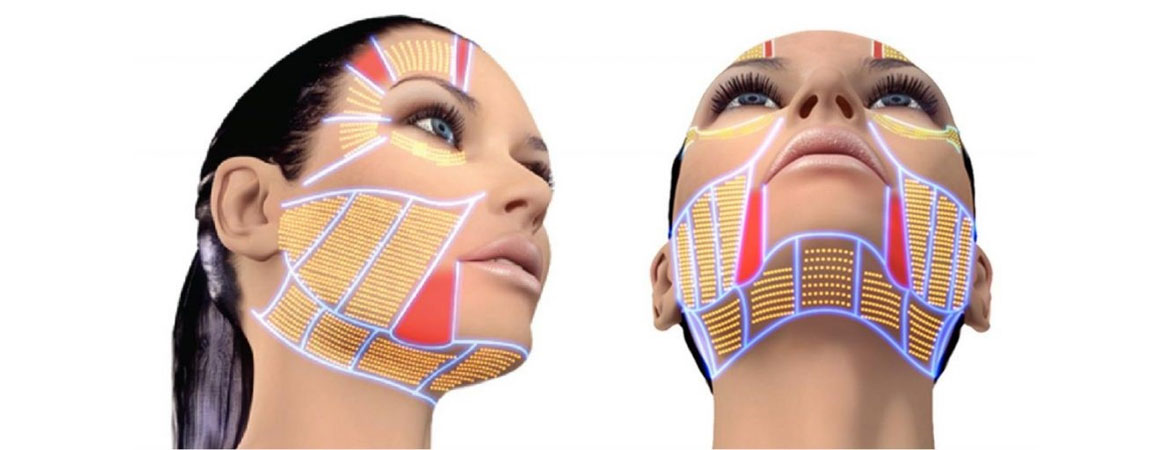 Hifu Facelift Get The Perfect Face Without Surgery
