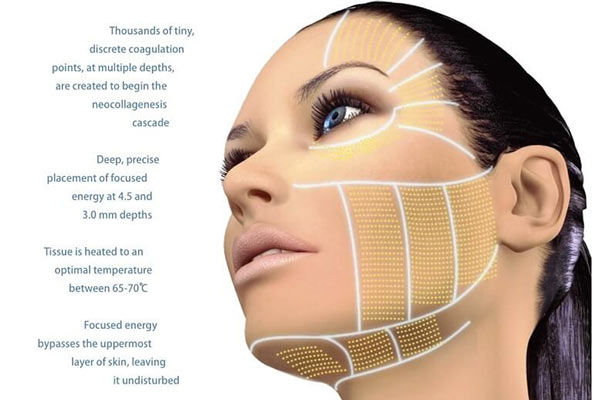 Hifu Facelift Treatment