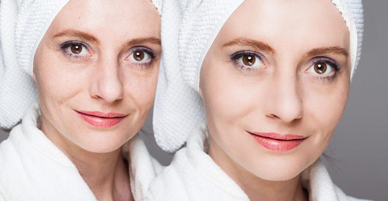 Laser Skin Tightening Everything To Know