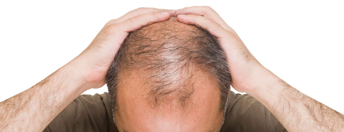 Laser Treatments For Hair Loss
