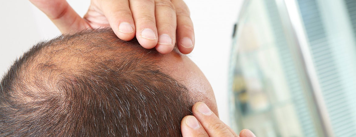 Learn More About Low Level Laser Therapy For Hair Loss