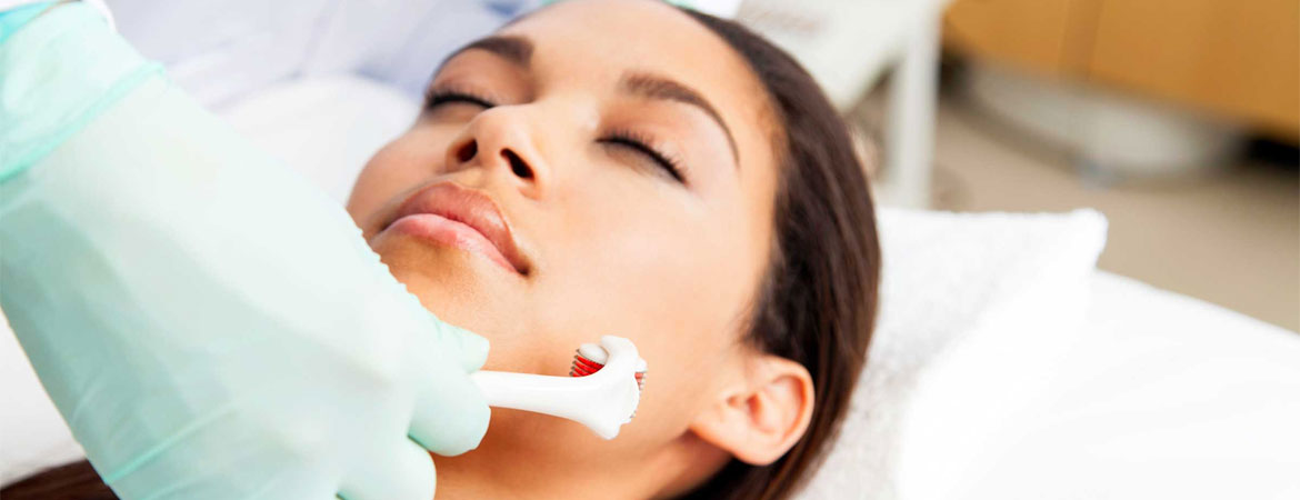 Microneedling Effective Way Tighten Skin