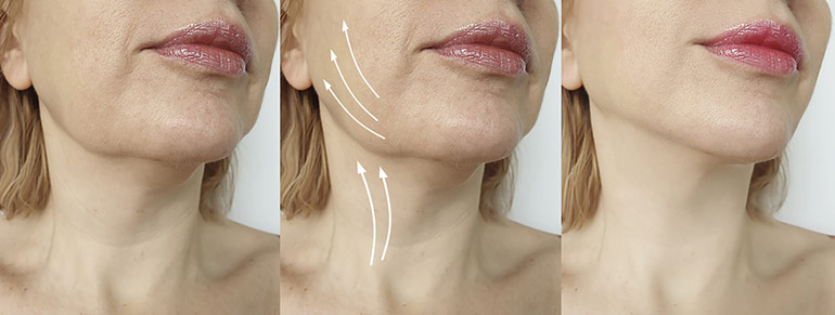 Radiofrequency Facial Skin Tightening